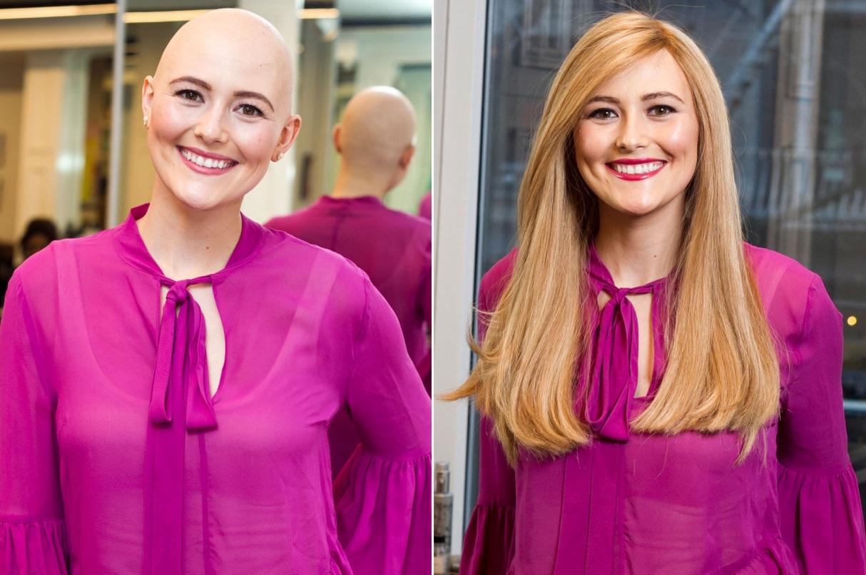 parrucche oncologiche